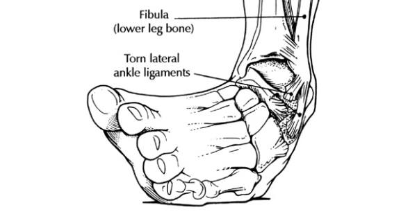 Inverted ankle joint